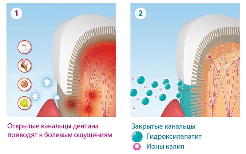 Причина повышенного чувствительности зубов